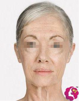 60岁皮肤松弛下垂程度较重