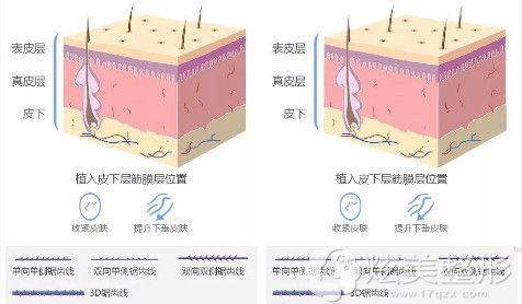 针对面部松弛下垂做埋线提升手术