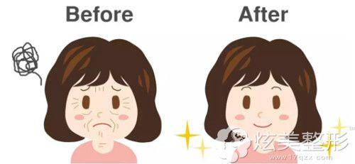 埋线和脂肪填充一起做面部年轻化效果更好