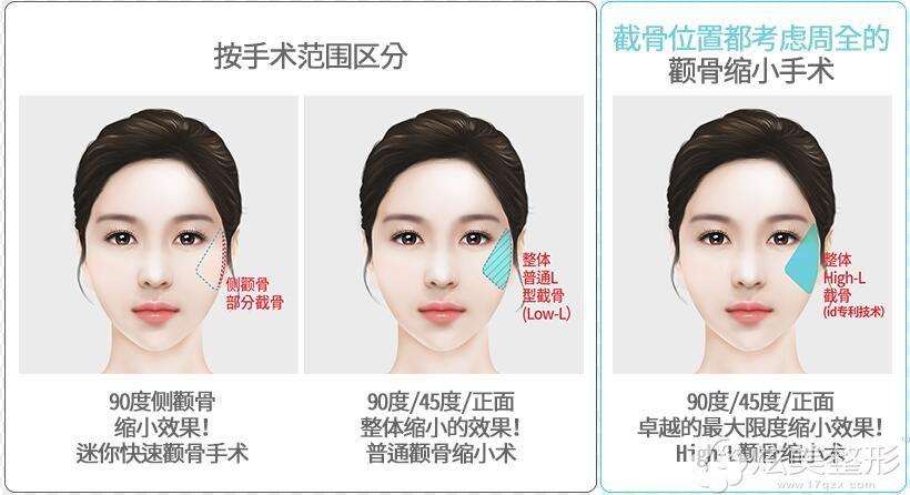 韩国High-L颧骨缩小手术
