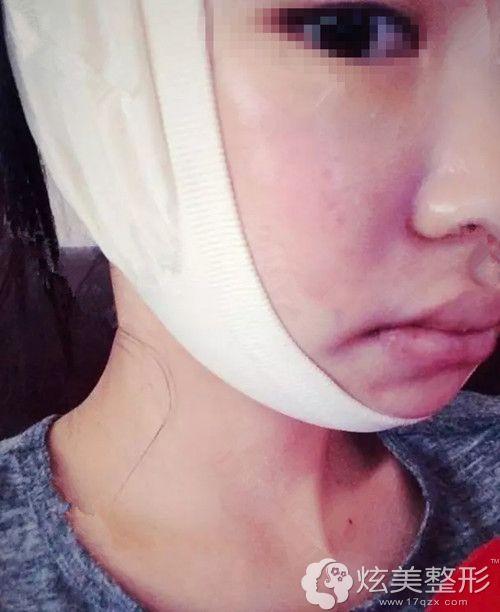 刚做完High-L颧骨缩小手术术后三天包扎