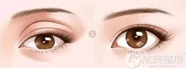 玻尿酸填充眼窝