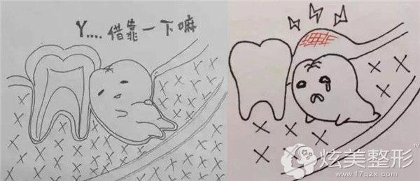 埋伏牙可能引发多种口腔问题