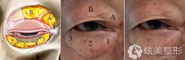 脂肪型肿泡眼:需要做切开双眼皮+去皮去脂项目