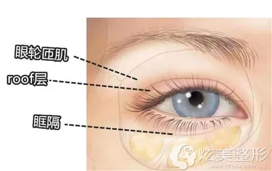 上睑松弛型肿泡眼:需要做切开双眼皮+上睑提升+去皮项目