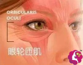 肌肉型肿泡眼:去除一部分眼轮匝肌+切开重睑