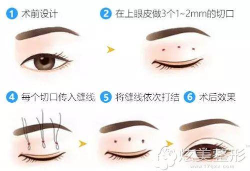 埋线双眼皮手术原理