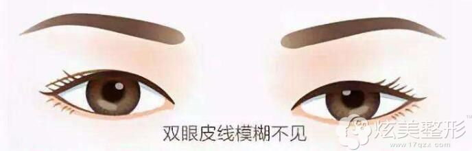 双眼皮术后1-3年重睑线消失只能修复