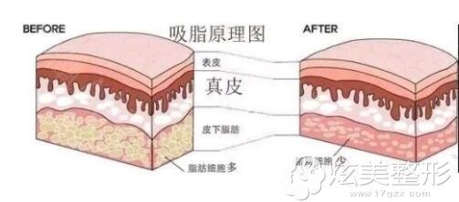 吸脂减肥的原理图