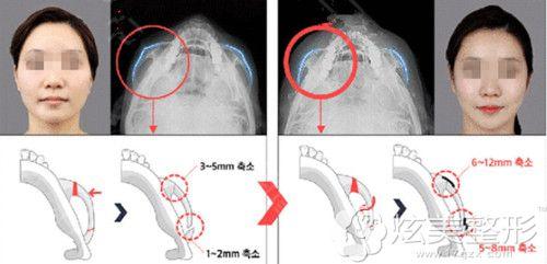 韩国原辰做3D颧骨内推术前后对比
