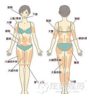 德新整形做水动力吸脂手术适合全身肥胖人群