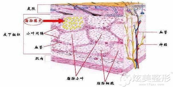 脂肪填充在面部的层次不会下垂