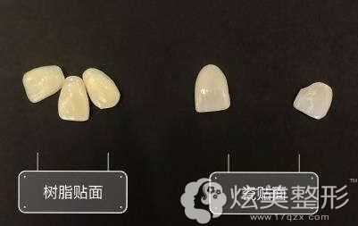 牙齿贴面:分为树脂贴面和瓷贴面