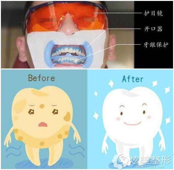 冷光美白:其实是牙齿漂白术