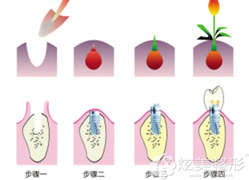 种植牙治疗原理