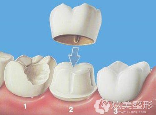 仿生冠进行牙齿矫正