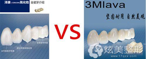 Cercon泽康全瓷牙和拉瓦相比硬度有区别