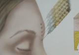 脂肪填充眉弓下移、眼睛肿是失败吗?韩国医生说不一定