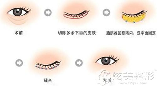 手术祛除眼袋的示意图