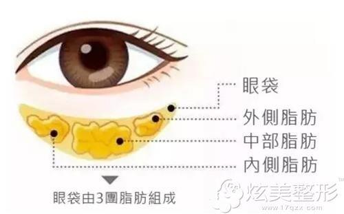 眼袋的形成原因