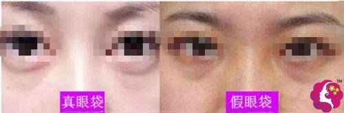 真性眼袋和假性眼袋的区别图
