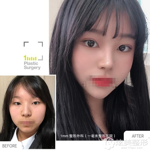 双眼皮+硅胶隆鼻前后对比案例