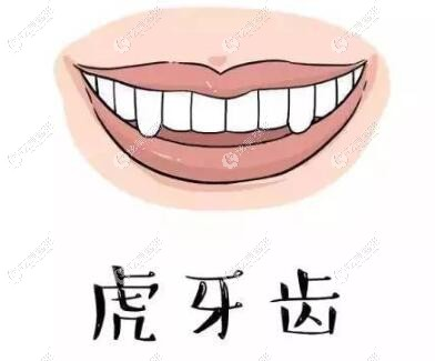 北京西尔口腔虎牙牙齿矫正价格和效果看:确实便宜又好