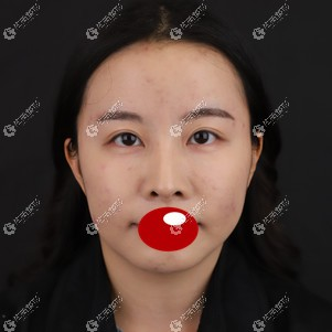 广州积美面部提升效果反馈:10根美国快翎线让皮肤变紧致