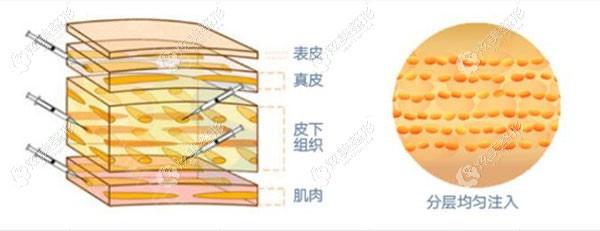 分层多点的填充脂肪细胞