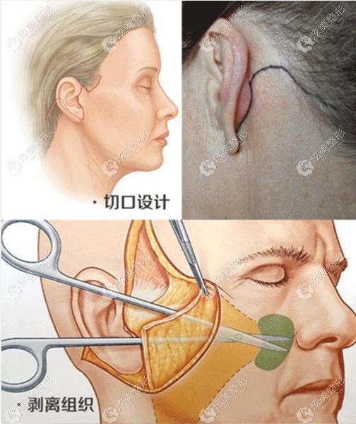 面部小拉皮手术切口的位置和大小是不是对疤痕有影响呢