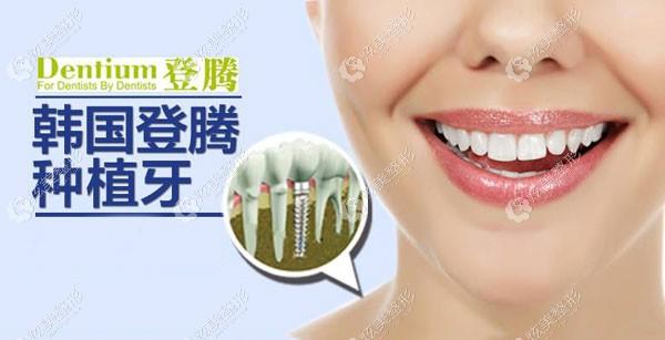必看呼市华医口腔的种植牙收费清单,想种牙嫌贵的亲们看了再说