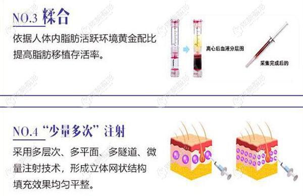 脂肪填充中邓医生会采用分层多点的注射6134938816.jpg