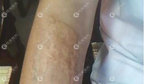 去了趟上海虹桥医院疤痕科,看完案例后感觉胳膊上烧伤的疤有救了